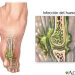 Osteomielitis, infeccion en huesos