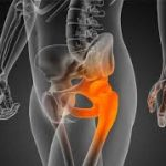 Desgaste de cadera ¿ hay alguna solucion mejor a la colocacion de una protesis?