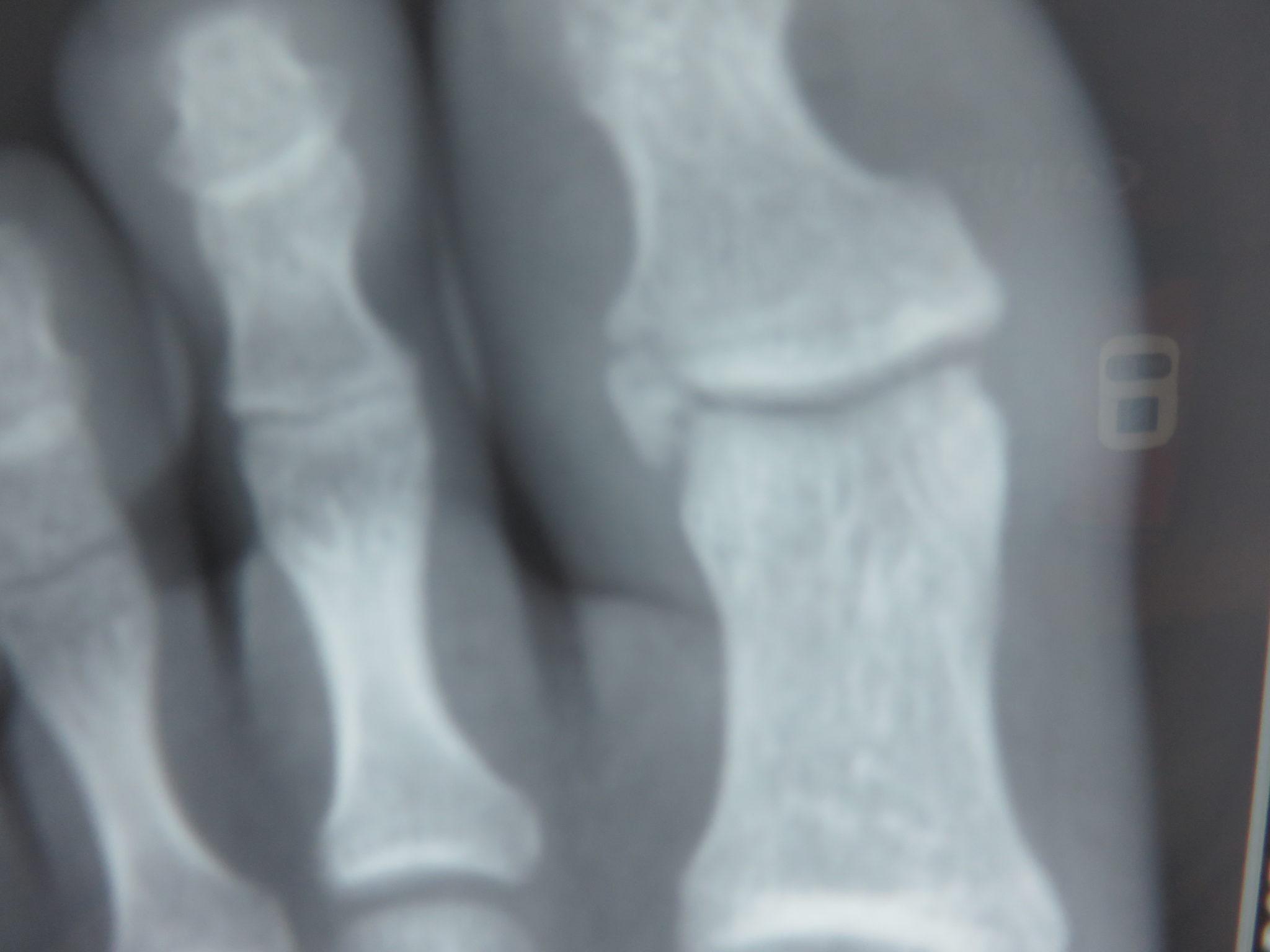 Fractura de la base de falange en el pie