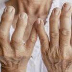 ¿Que es la artritis?