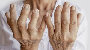 que es la artritis